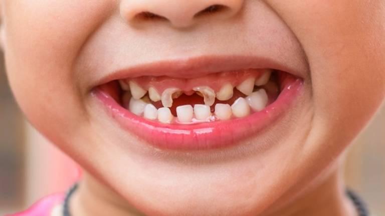 Dấu hiệu nhận biết viêm tủy răng ở trẻ em