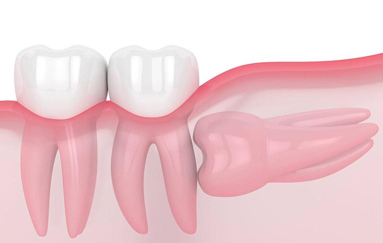 răng đau nhức dữ dội