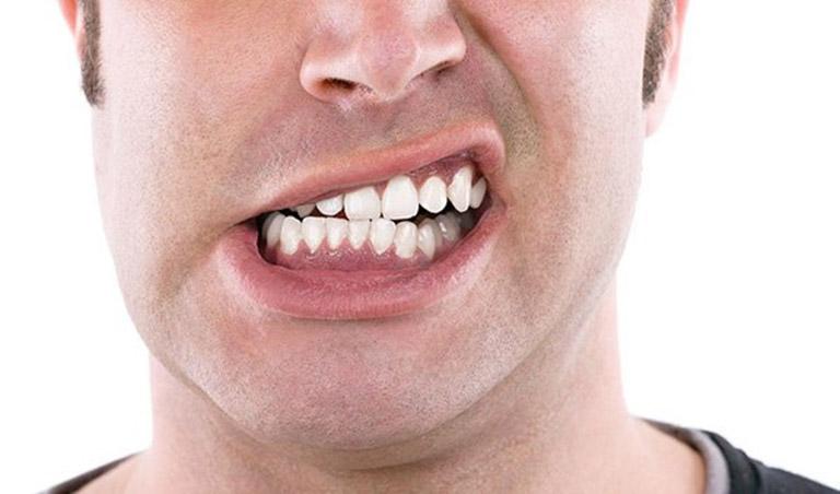 bị đau răng sau khi bọc răng sứ