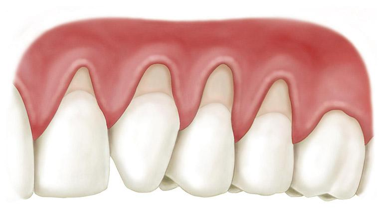 tụt lợi khi bọc răng sứ