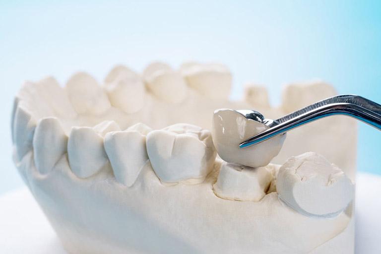 Bị viêm nha chu có bọc răng sứ được không
