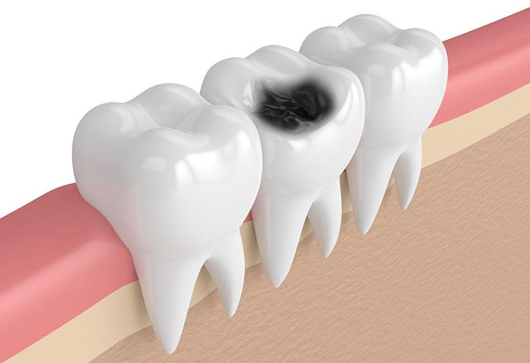 sâu răng cấp độ 1