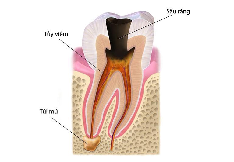 sâu răng cấp độ 3