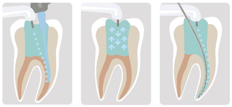 răng sâu độ 4