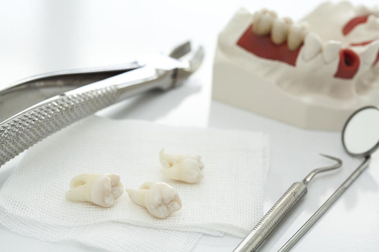 Chi phí nhổ răng khôn