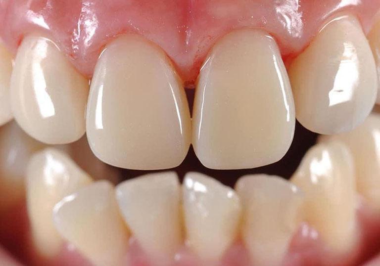 đau nhức kẽ răng