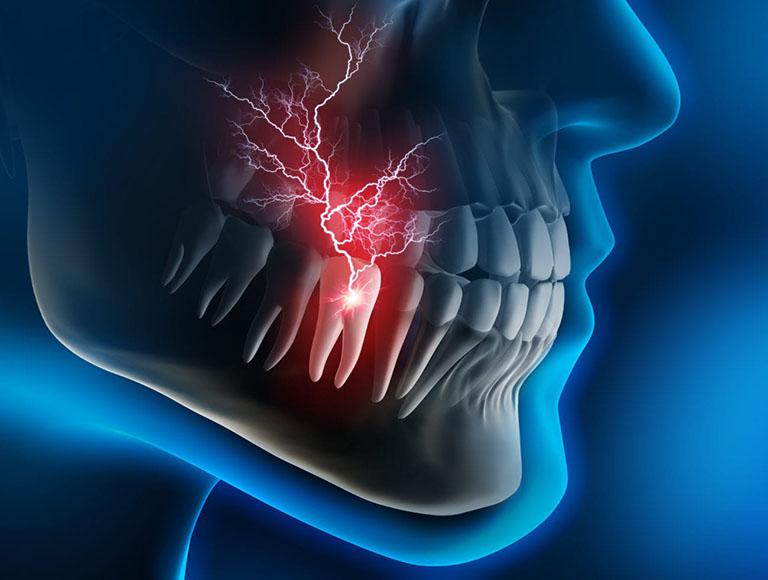 đau răng khôn gây nhức đầu