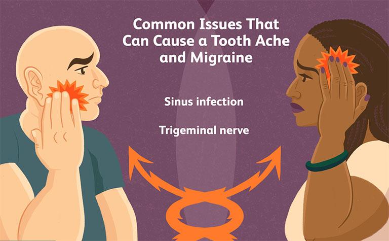 Đau răng gây nhức đầu