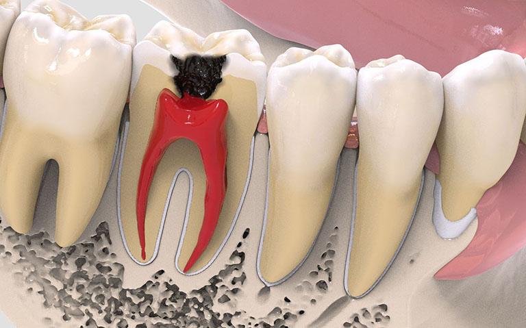 Đau răng dẫn đến sốt