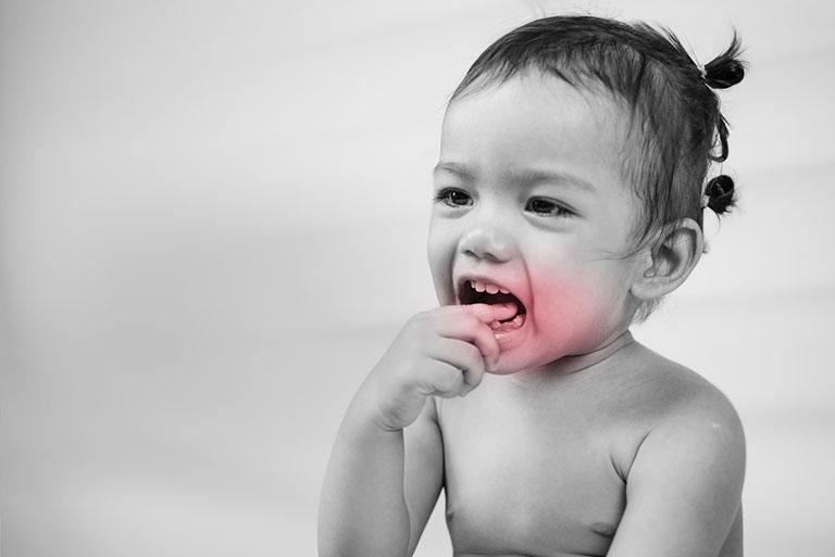 Đau răng gây sốt