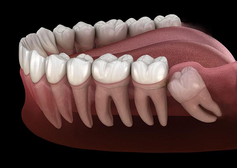 Đau răng hàm nổi hạch