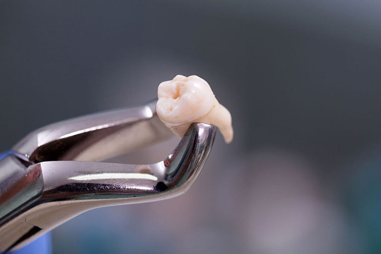 Đau nhức răng hàm trong cùng