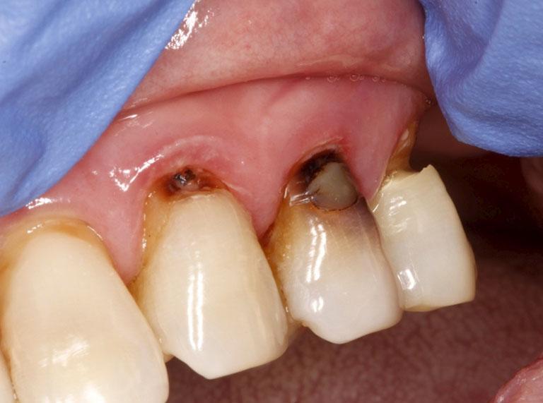 nguyên nhân đau răng ở người già