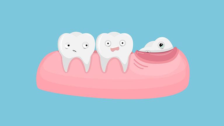 Đau nhức răng vào ban đêm