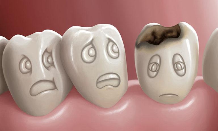 cách làm răng sâu nhanh rụng