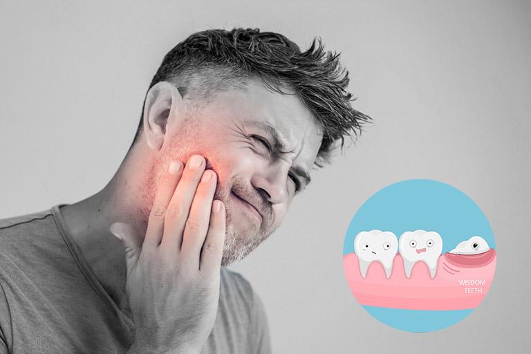 mọc răng khôn đau nhức phải làm sao