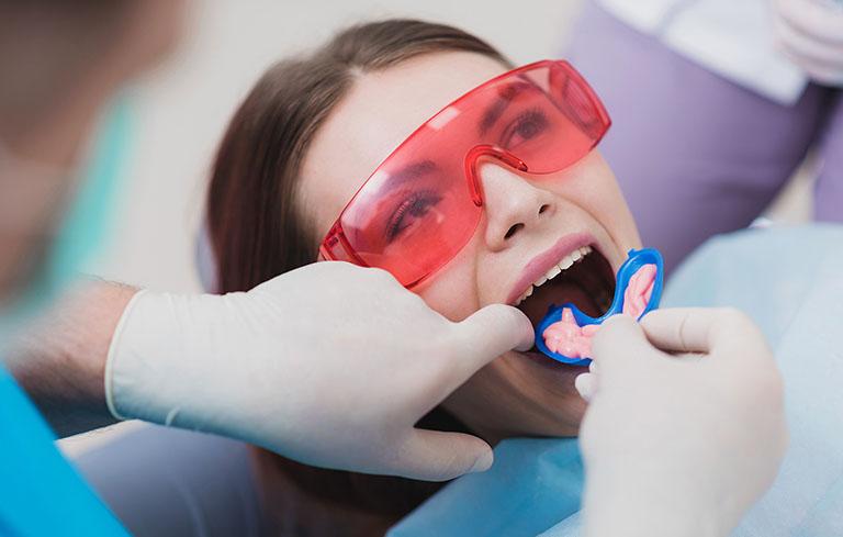 mòn răng là gì