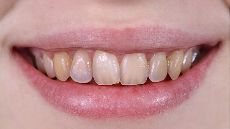 men răng bị mòn