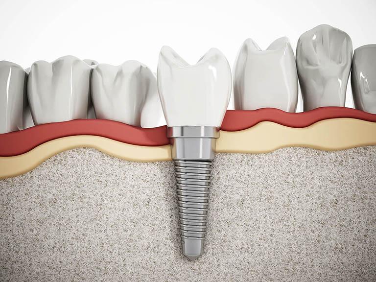 nhổ răng bao lâu thì bị tiêu xương