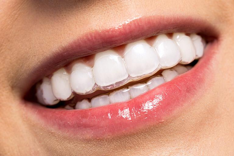 niềng răng là như thế nào