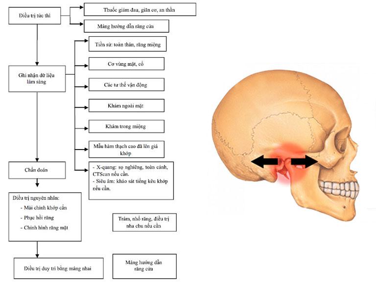 phác đồ điều trị viêm khớp thái dương hàm