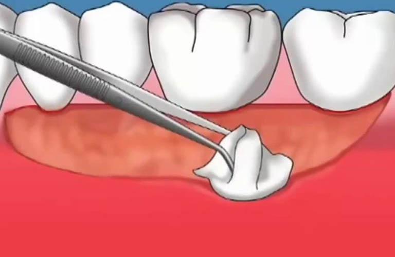 Phẫu thuật chữa tụt lợi chân răng