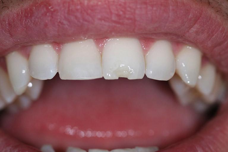 đau răng khi ăn đồ ngọt