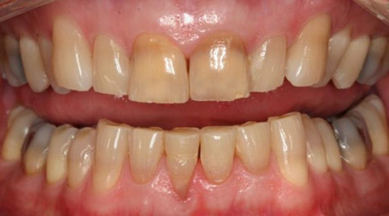 điều trị răng mòn mặt nhai