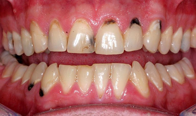 răng cửa bị đen bên trong