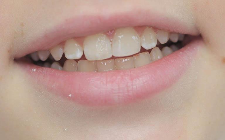trám răng cửa bị mẻ có đau không