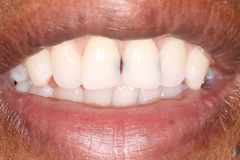 răng cửa bị sâu phải làm sao