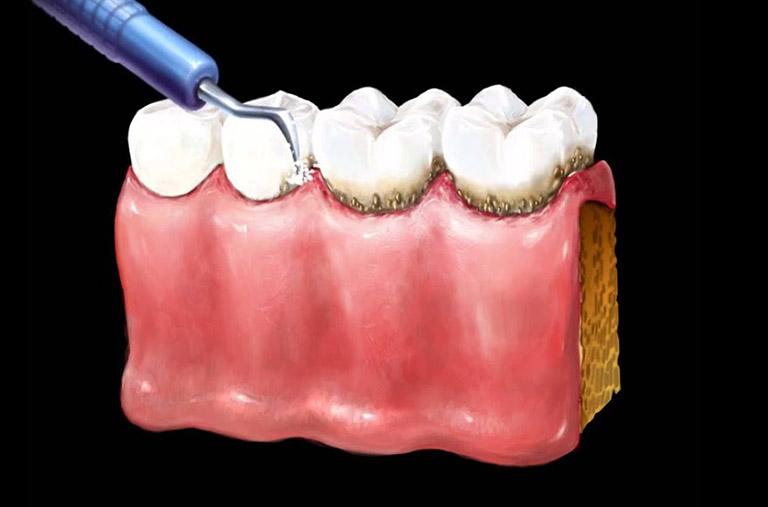 khắc phục răng cửa bị sâu