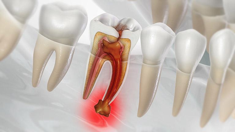 răng hàm bị sâu vào tủy