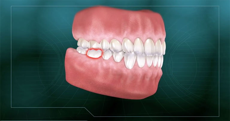 răng không bị sâu nhưng đau