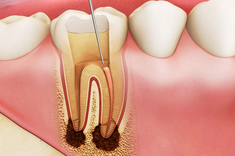 răng sâu bị lung lay có nên nhổ không