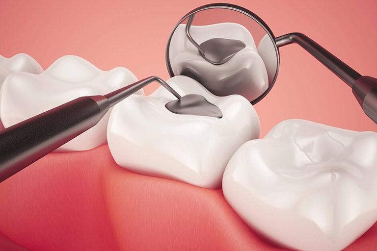 Răng vĩnh viễn của trẻ bị sâu