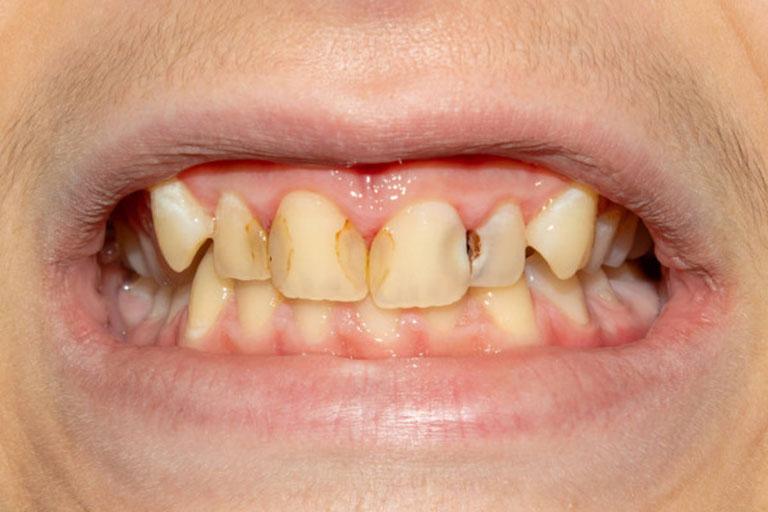 sâu răng ở giữa 2 răng cửa