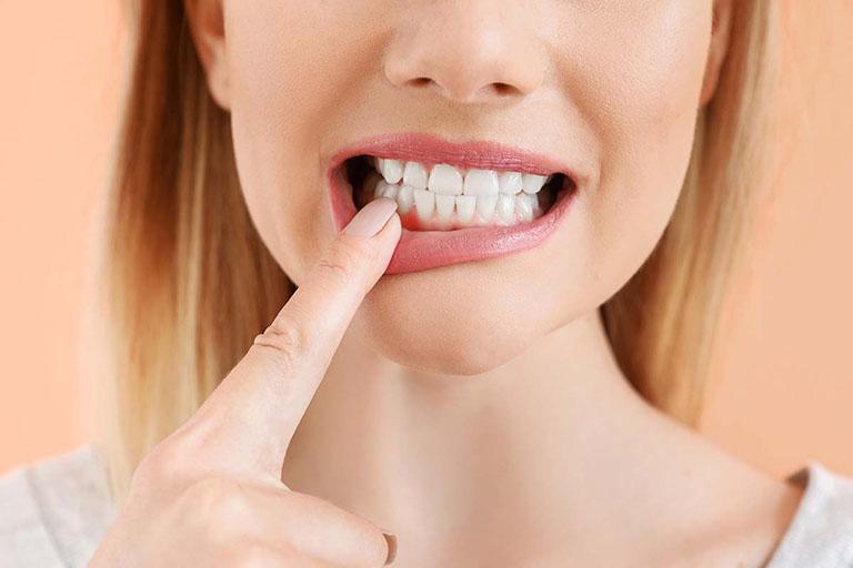 sâu răng gây viêm lợi