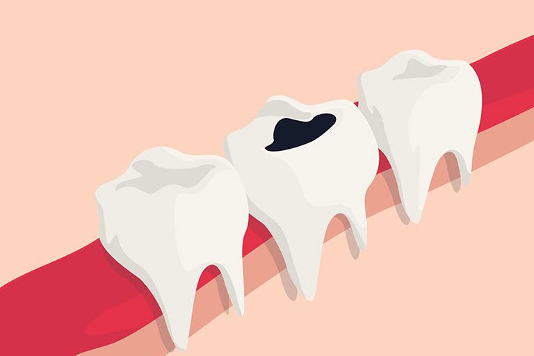 Có mẹ nào bị sâu răng khi mang thai
