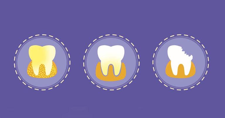 Sâu răng lâu năm có sao không