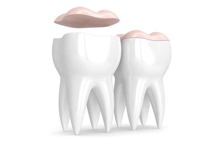 sâu răng để lâu có sao không