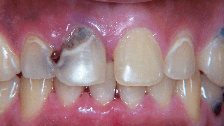 sâu răng lâu năm