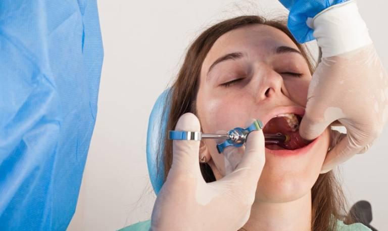 Quy trình trám răng sâu nặng, lỗ to