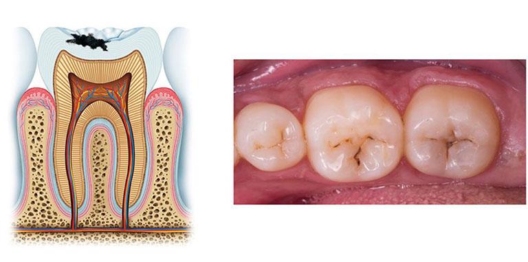 răng sâu nên trám hay bọc sứ