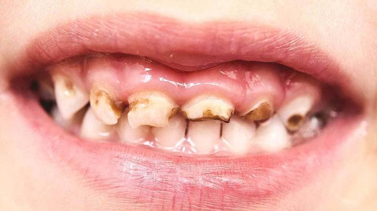 bệnh sún răng ở trẻ em