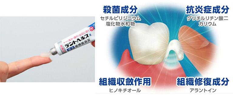 thuốc trị tụt lợi của Nhật Bản