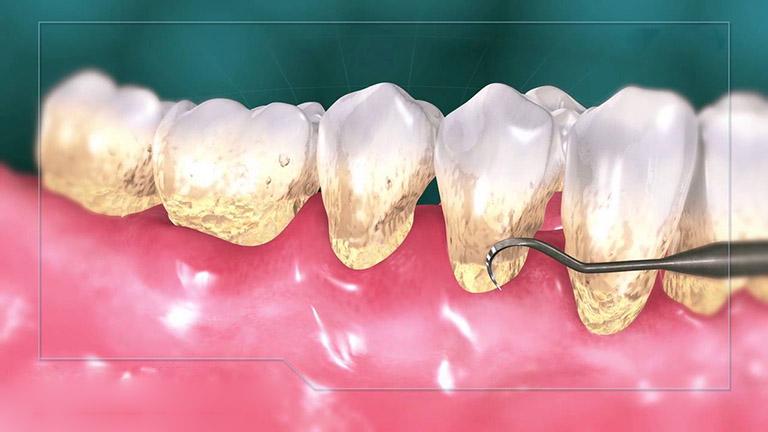 nguyên nhân gây tiêu xương răng