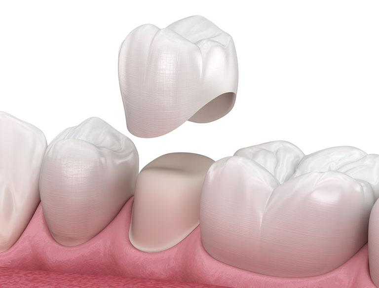 Trám răng bị cộm