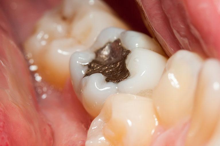 trám răng giữ được bao lâu
