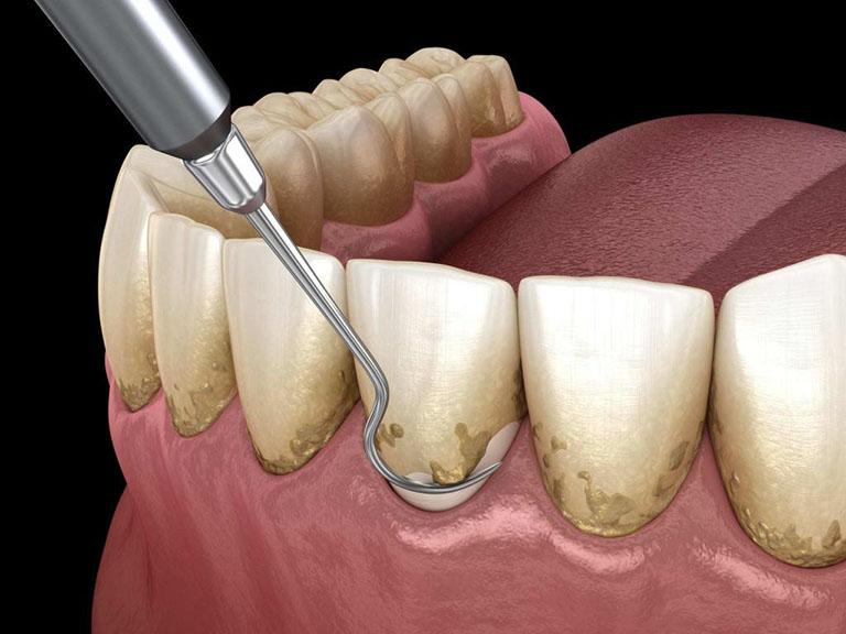 trám răng có cần lấy tủy không